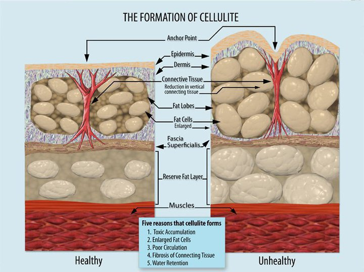 Formation_of_Cellulite.jpg